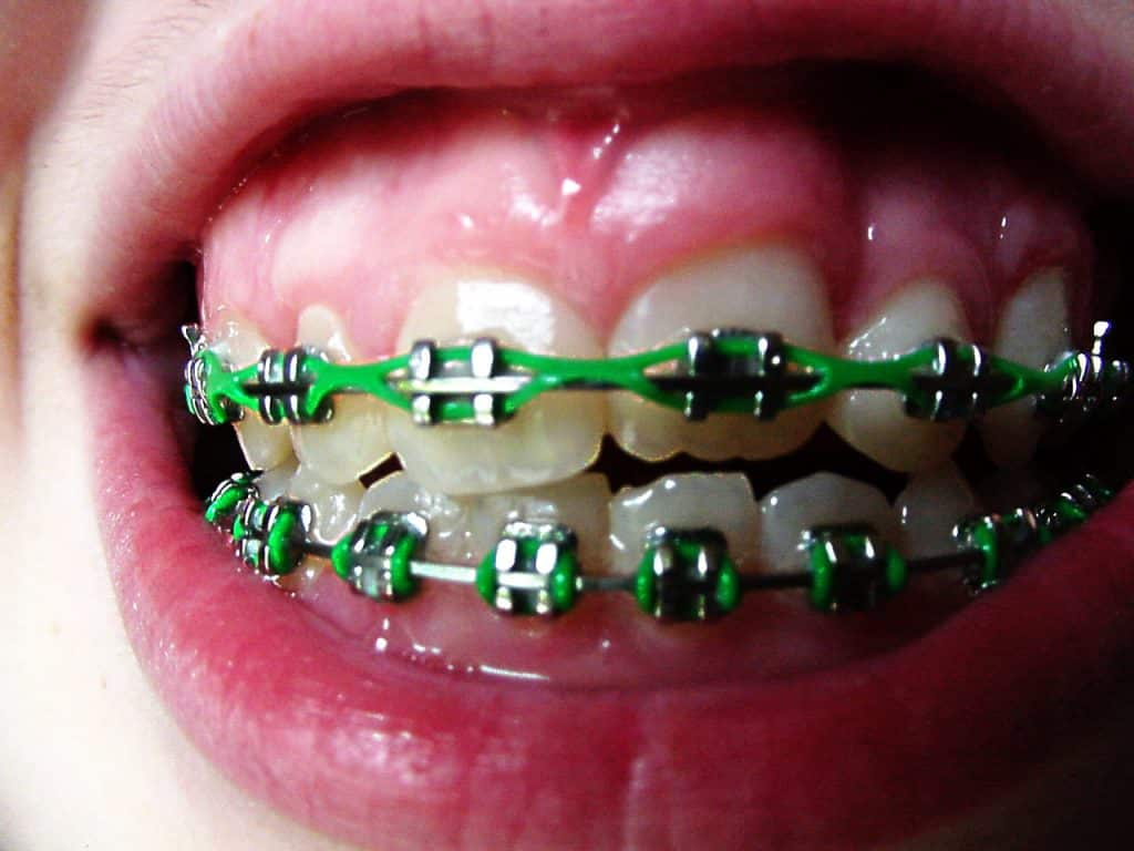 your braces Tampa, FL orthodontist